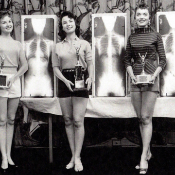 An X-ray beauty contest in 1956